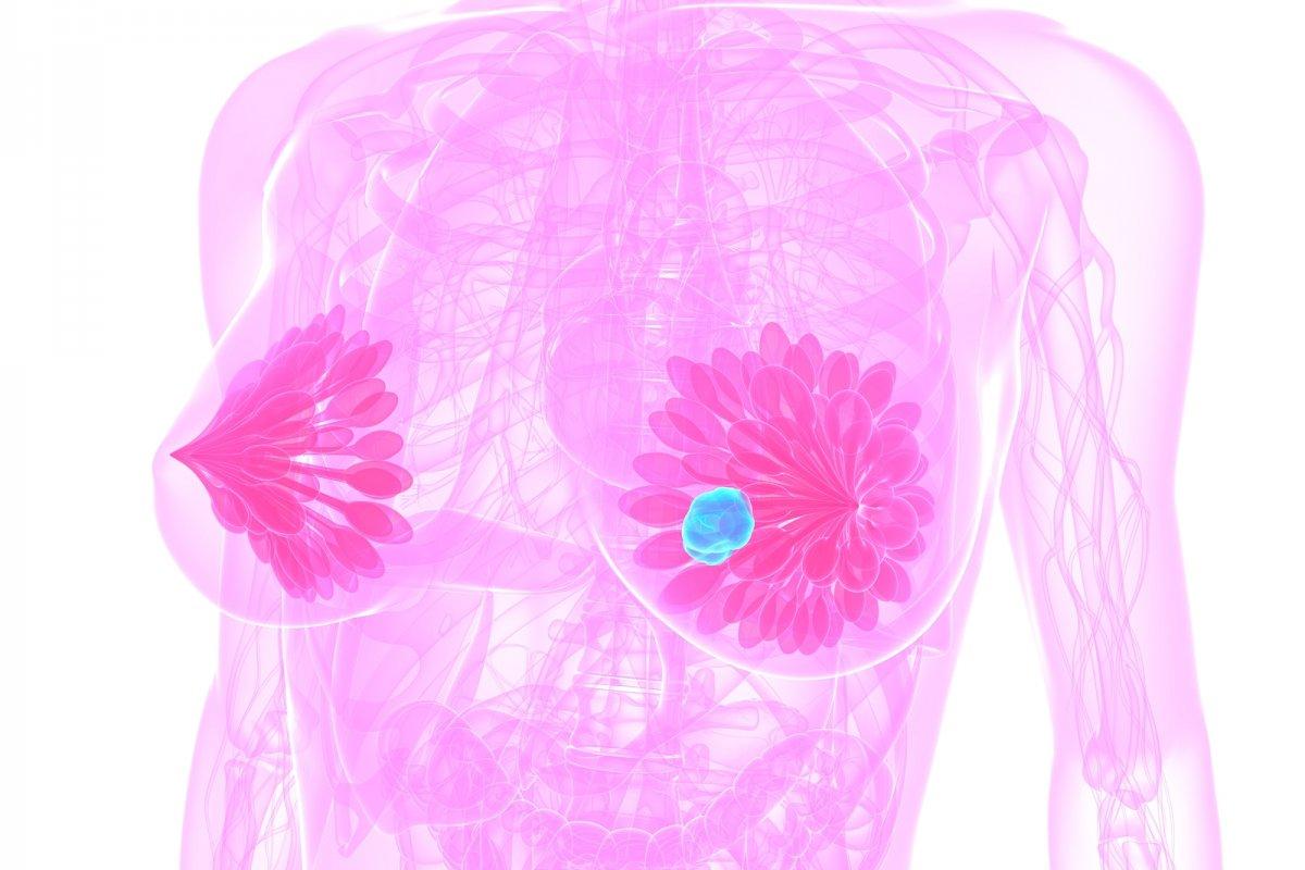 [Com quarenta, 62% das mulheres adiaram cuidados contra o câncer de mama]
