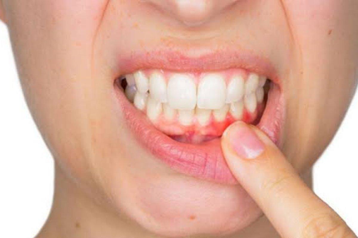 [Ir ao dentista é a única forma de intervir em casos de periodontite! ]